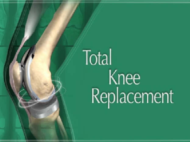 Total Knee Replacement Patient Education course image