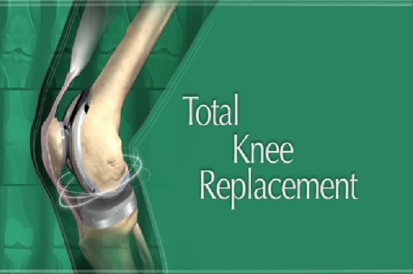 Total Knee Replacement Patient Education