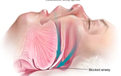 Sleep Apnea: Education, Awareness, and Screening