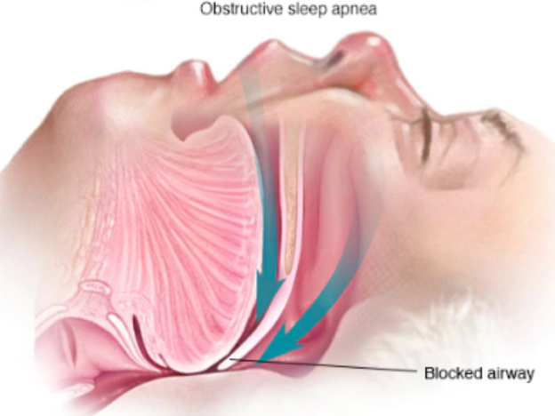Sleep Apnea: Education, Awareness, and Screening course image