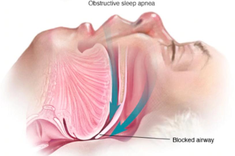 Sleep Apnea: Education, Awareness, and Screening